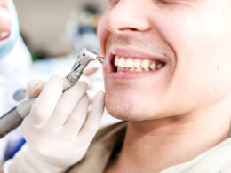 Why is regular professional dental cleaning mandatory?