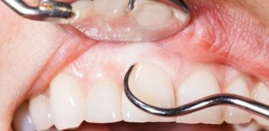 When should you have professional gum line scaling done?