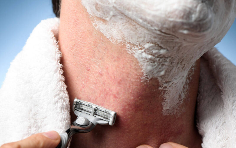 What You Need to Know About Treating Razor Bumps